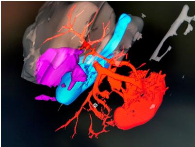 Удаление  доброкачественной опухоли печени, связанной с желчным пузырем