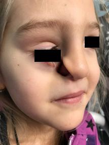 Челюстно-лицевые хирурги НПЦ восстановили девочке лицо