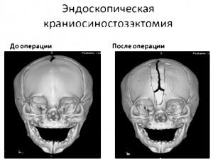 Эндоскопическая краниосиностозэктомия.