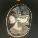 2016-11-29-neuro